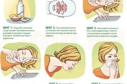 Этапы промывания носа