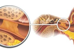 Серная пробка в ухе - причина заложенности ушей