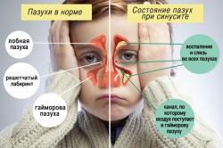 Схема синусита