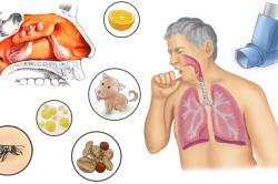 Провоцирующие факторы синусита