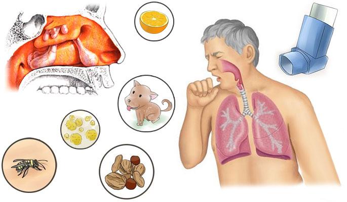 Как лечить гастрит с пониженной кислотностью таблетки