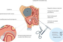 Эндоскопия для диагностики синусита и ринита