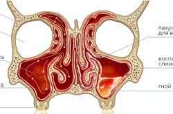 Схема аллергического гайморита