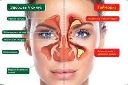 Гайморит - причина заложенности носа