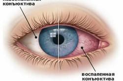 Покраснение глаз - осложнение при гайморите