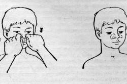 Массаж переносицы при лечении белых густых соплей у ребенка