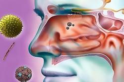 Вредная микрофлора как причина появления насморка