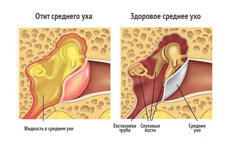 Болит слева на 16 неделе