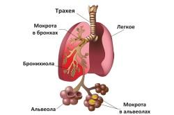 Пневмония - осложнение риносинусита
