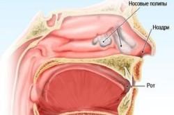 Схема полипозного риносинусита