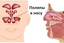 Полипы в носу - причина гайморита