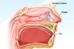 Схема расположения полипов в носу