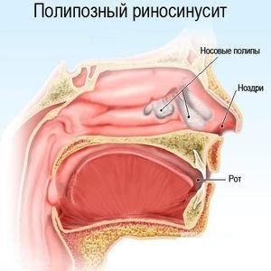 лечение аллергии аутолимфоцитотерапия