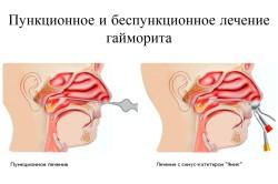 Лечение заболевания гайморвых пазух с помощью прокола
