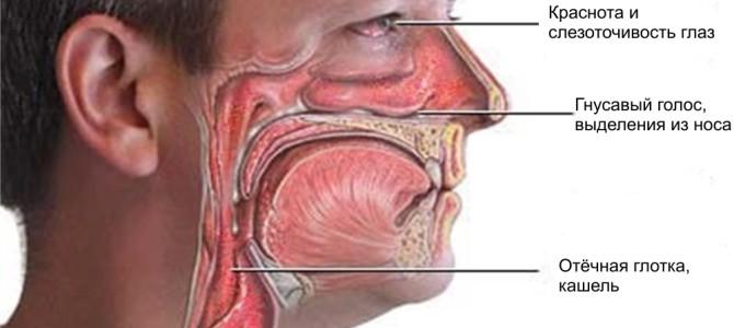 Насморк у взрослого: симптомы с фото