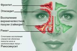 Локализация риносинусита