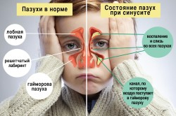 Сравнение здоровых пазух и пазух при синусите