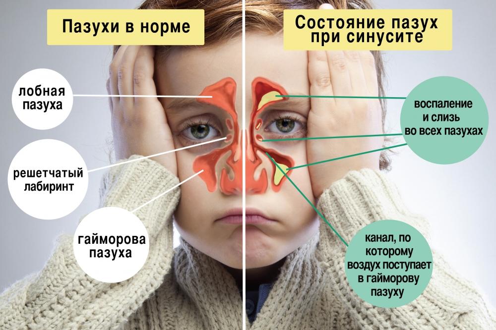 Симптомы гайморита у детей лечение в домашних условиях
