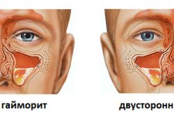 Гайморит - причина боли в носу