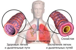 Воспаление легких - последствие золотистого стафилококка