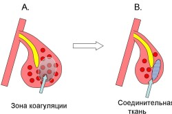Схема лазерной коагуляции для лечения ринита