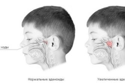 Наличие аденоидов как причина потери обоняния